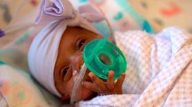 Dünyanın en küçük bebeği hayatta kaldı