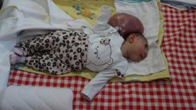 Elif bebek ameliyat edildi