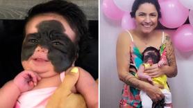 Yüzü simsiyah doğdu! Tedavisi Rusya'da bulundu!