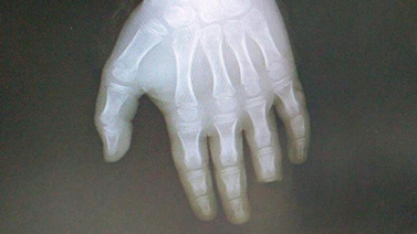 Korkunç olay! Parmağının yarısını kopardı