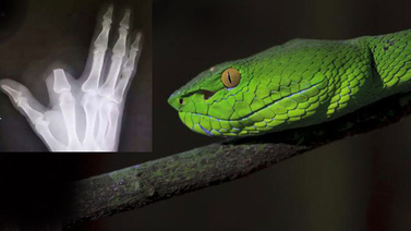 Yılanın ısırdığı parmağını kesti!
