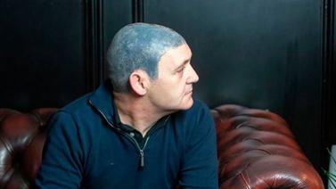 Kafasına dövme yaptırdı, pişman oldu!