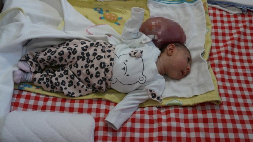 İki kafalı Elif bebek ameliyat günü bekliyor