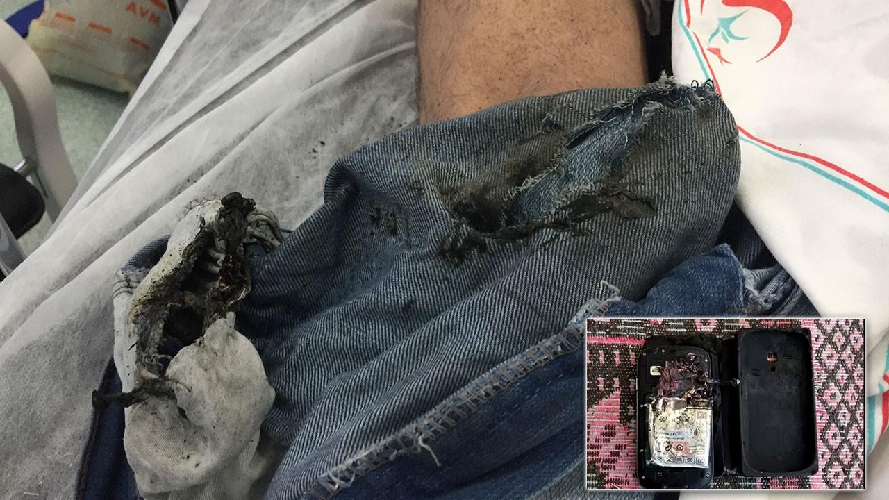 Cep telefonu bomba gibi patladı bacağını parçaladı