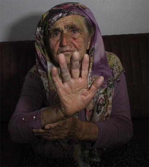 Fatma Altunöz'ün vücudunda ciddi yaralanmalar var.