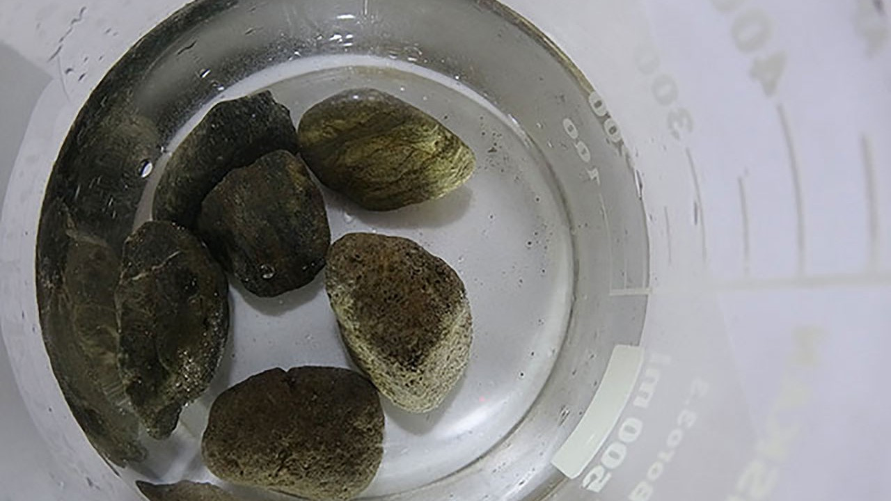Taş suyuyla karşılaşan kanser hücreleri intihar ediyor
