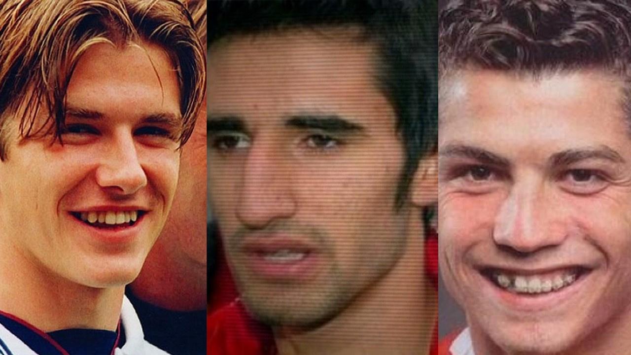 Ünlü futbolcuların estetik ile muhteşem değişimleri...