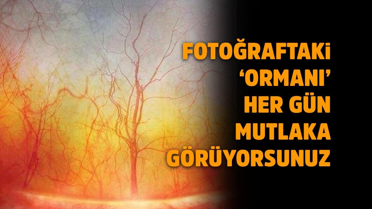 Beyin yakan fotoğraflar