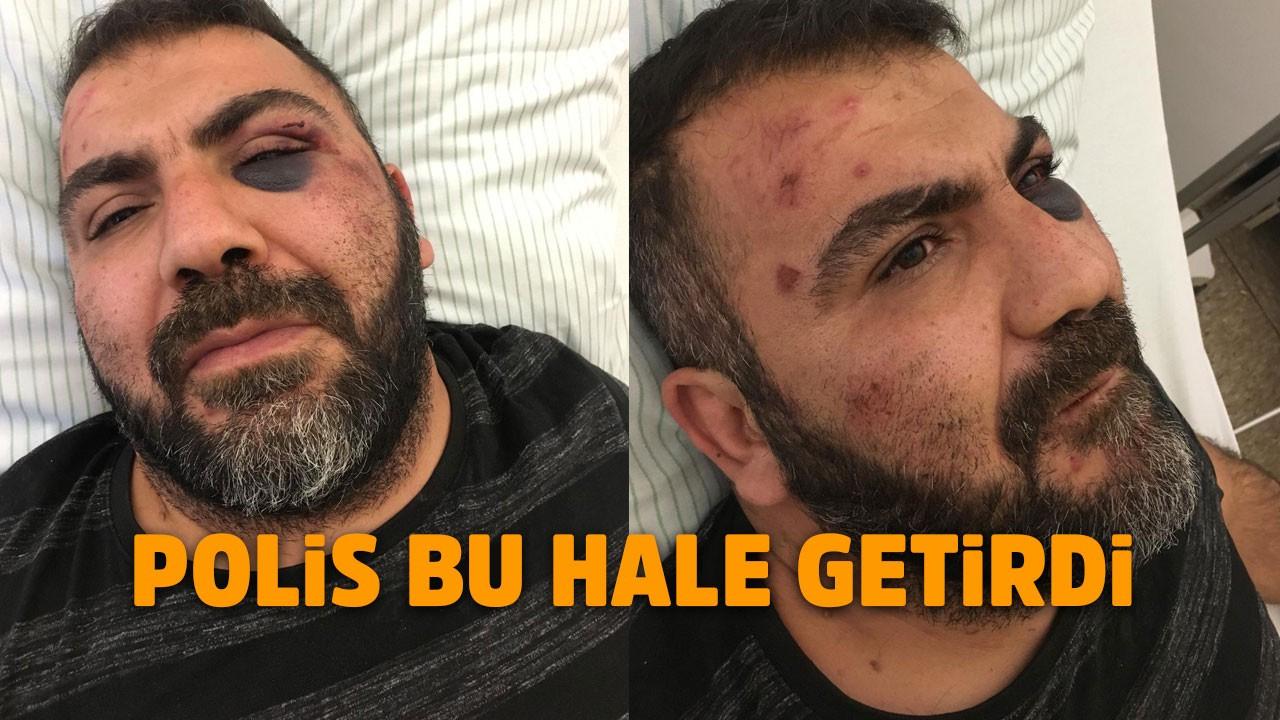 Almanya'da Türk vatandaşa polis şiddeti iddiası