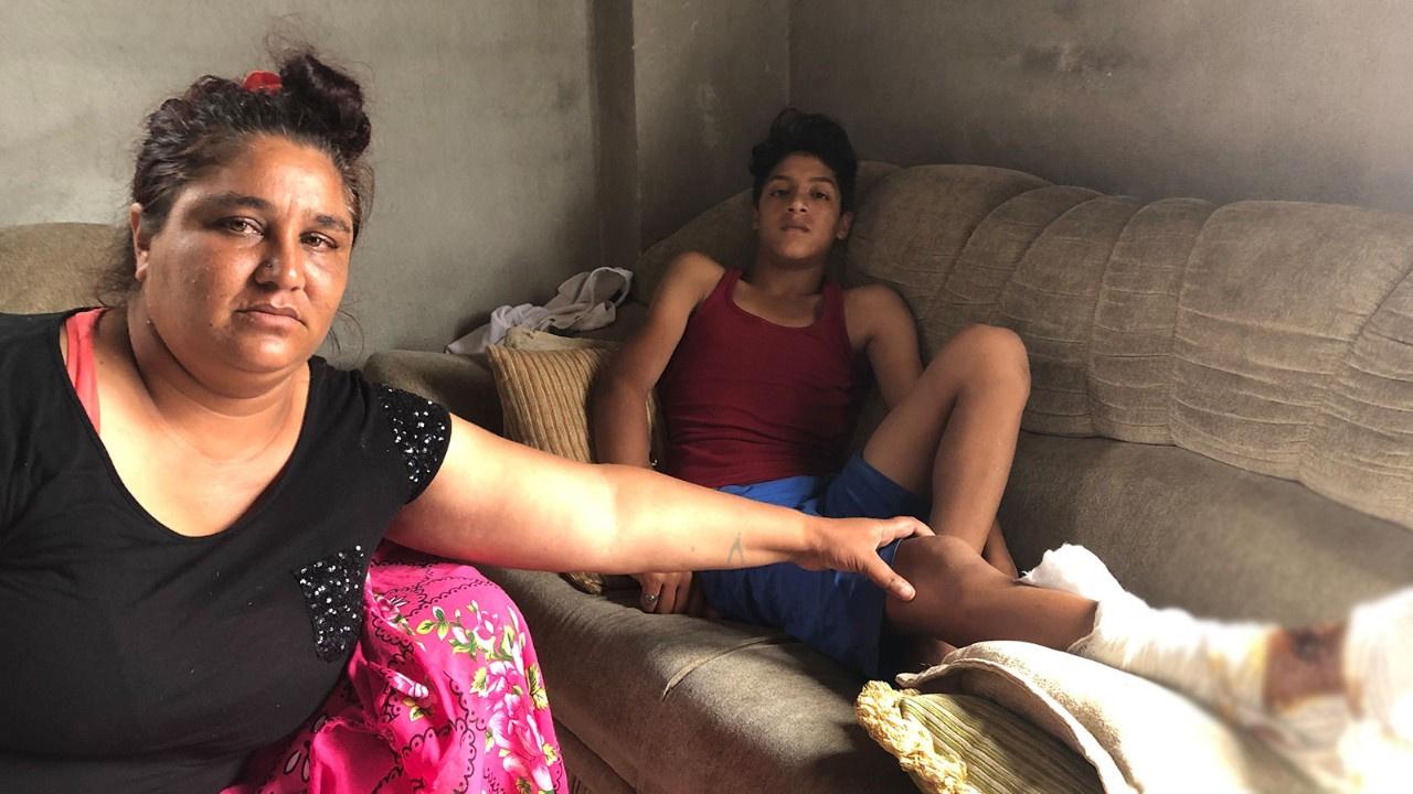Pitbul 13 yaşındaki çocuğa dehşeti yaşattı