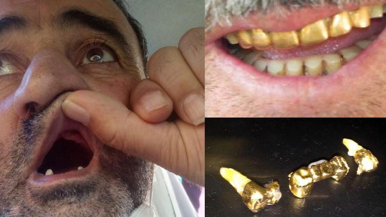 Altın dişlerini başka hastaya taktılar!