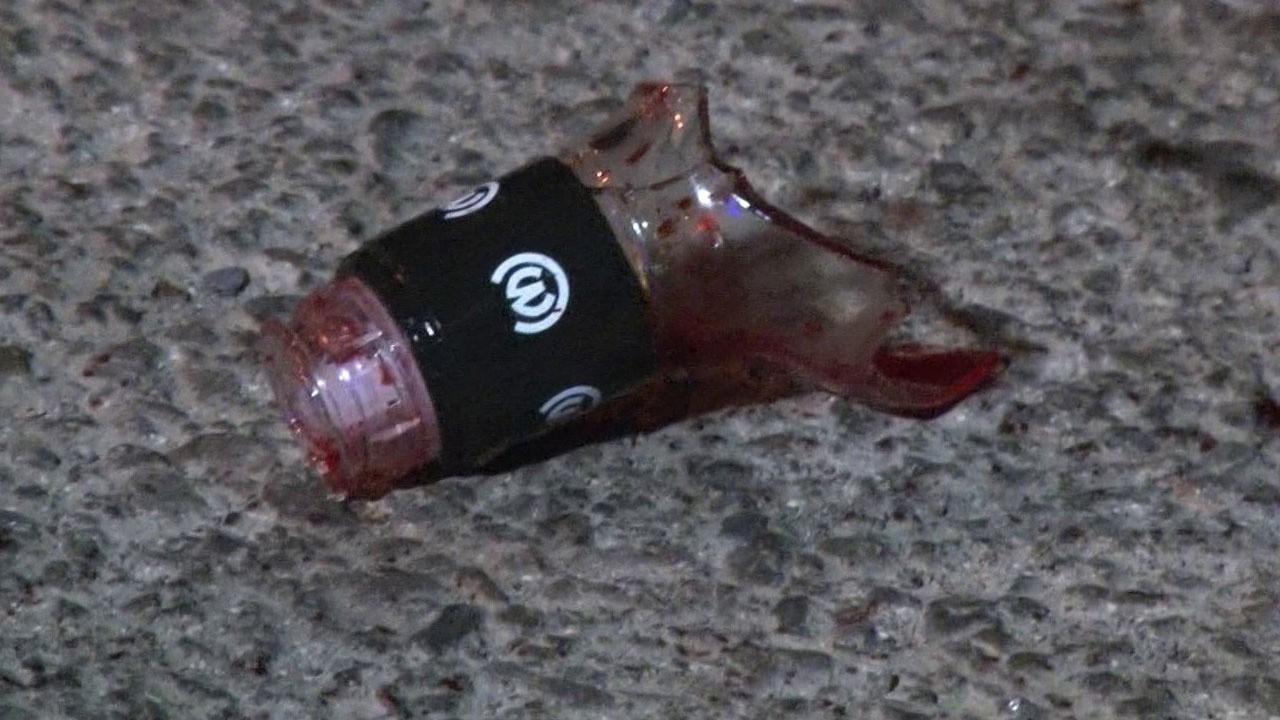 İstanbul'da dehşet!.. 'Arkadaşını şişe ile kesti'