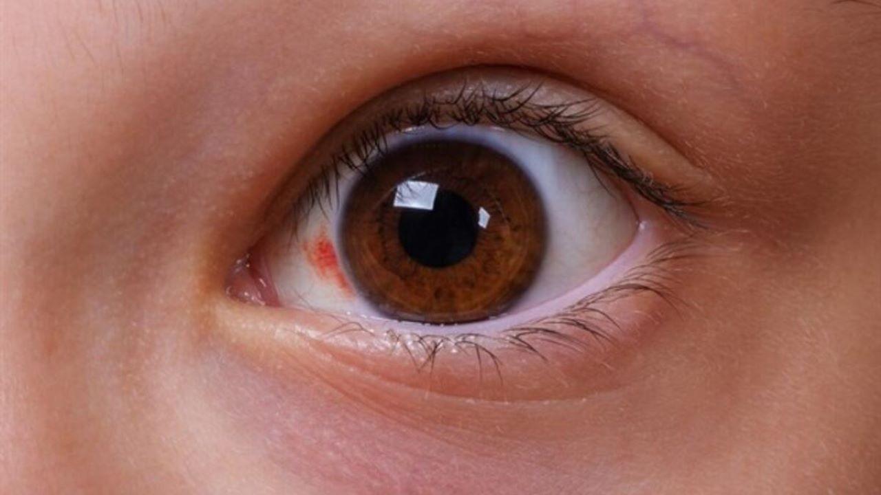 """Koronavirüsün yeni belirtisi """"Kırmızı göz"""""""