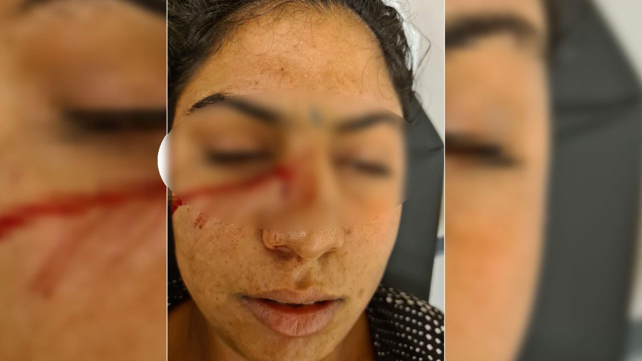 Kocası kafa atıp yüzünden bıçakladı!