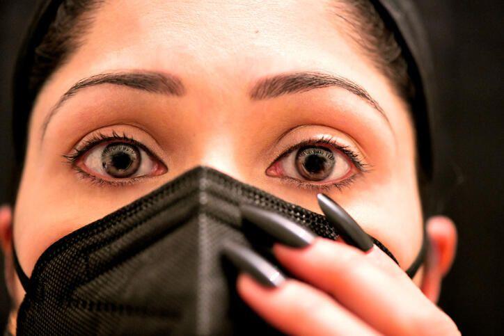 Koronavirüste bu belirtiye dikkat! Göz kızarıklığı koronavirüs belirtisi mi? - Sayfa 2