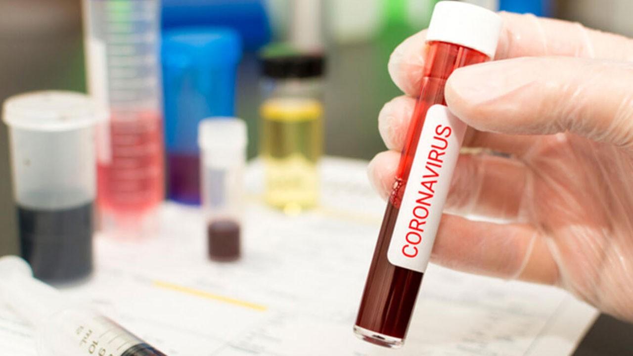 AIDS ve sıtma ilaçları koronada etkili mi?