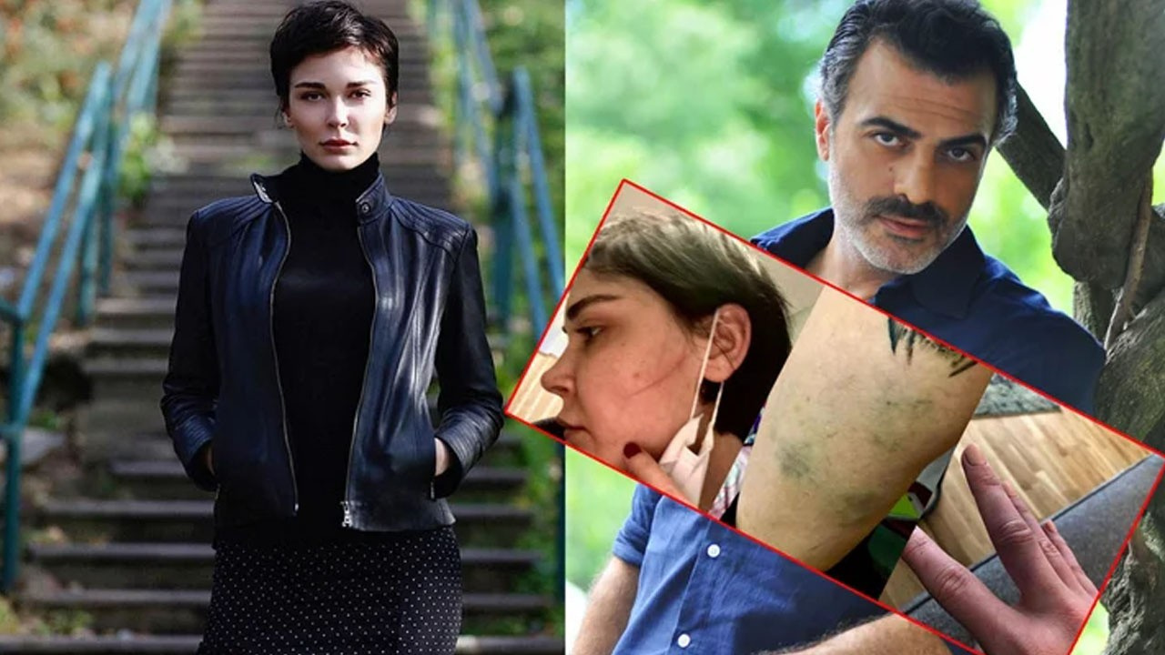 Sermiyan Midyat'ın skandal darp görüntüleri çıktı!