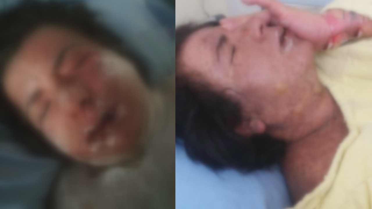 Alerji olan kadının derisi döküldü!