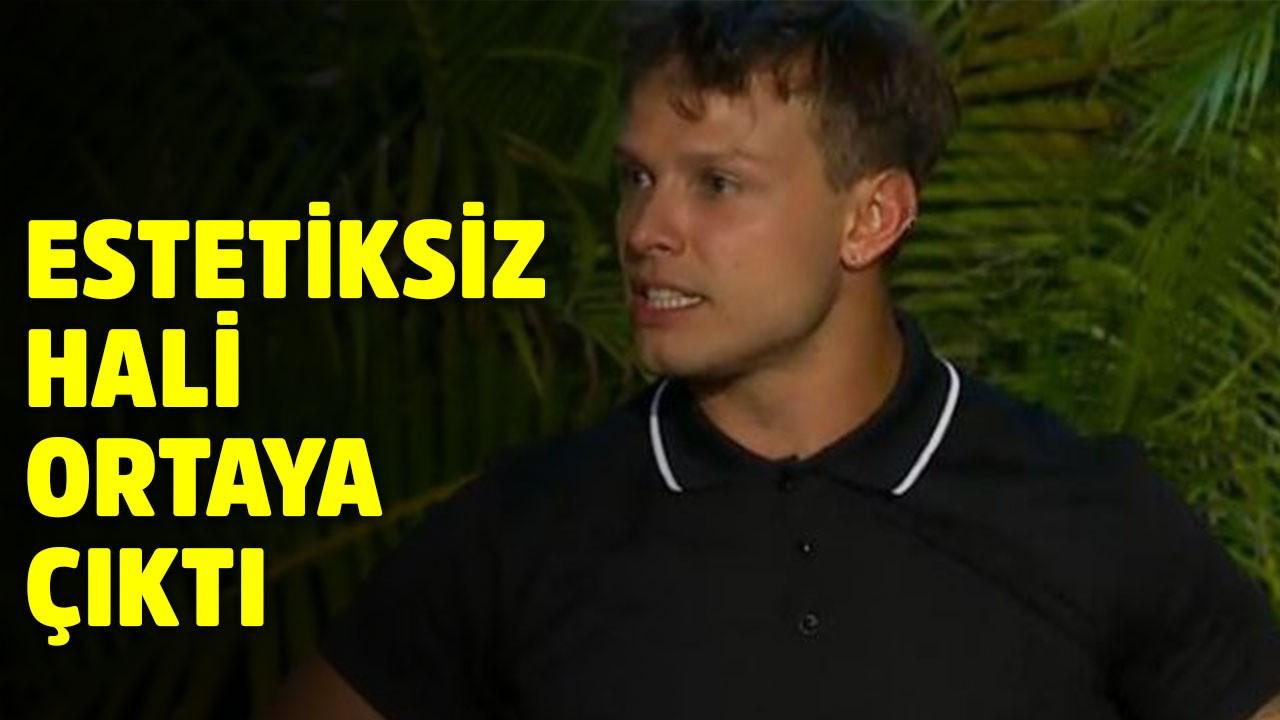 Murat Ceylan'ın estetiksiz hali ortaya çıktı!