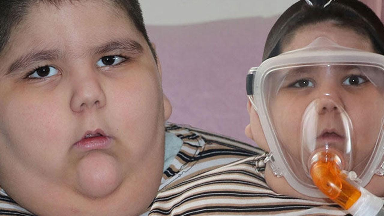 5 yaşında 90 kilo! Solunum cihazına bağlı uyuyor