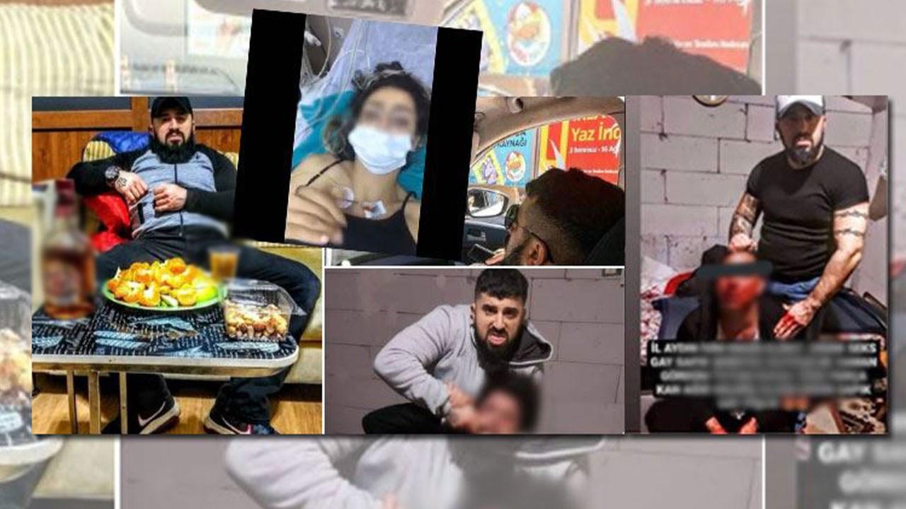 """Aydın'da vahşet! """"Eşcinsel"""" dedi öldüresiye dövdü!"""