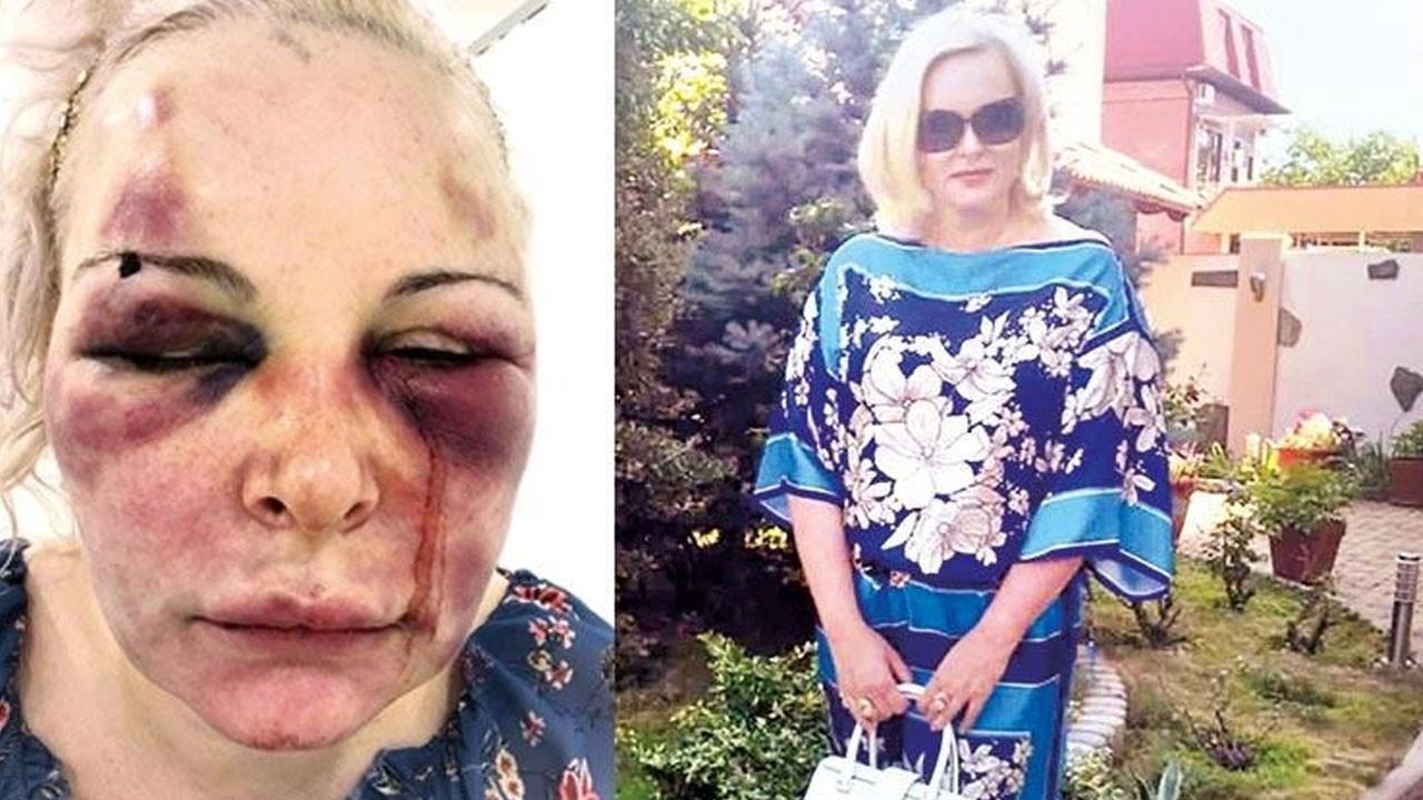 Sevgilisini iki gün boyunca dövmüştü! İşte cezası