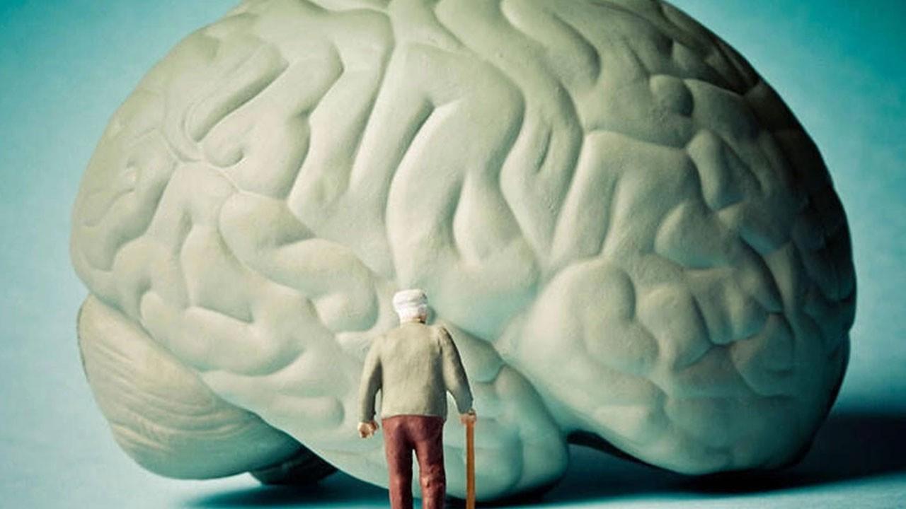Alzheimer'ı durdurmanın yöntemi bulundu