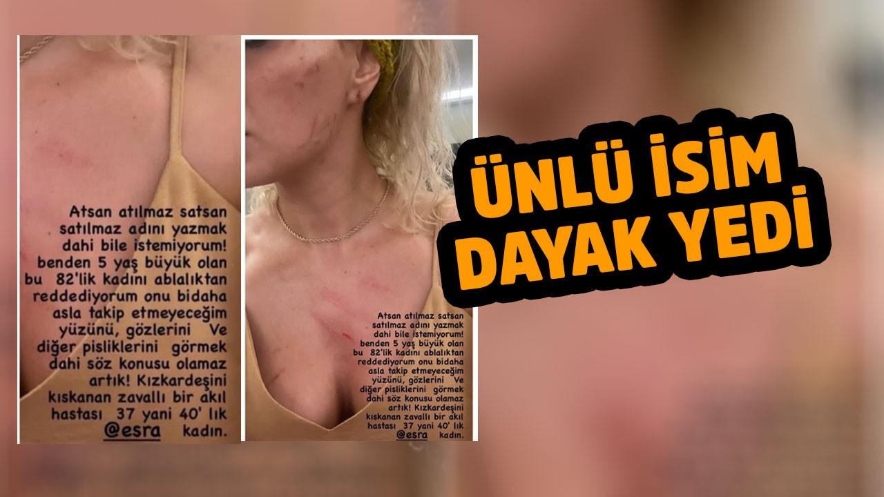 """Ceyda Ersoy ablasından dayak yedi, sosyal medyada isyan etti! """"Ablalıktan reddediyorum"""""""