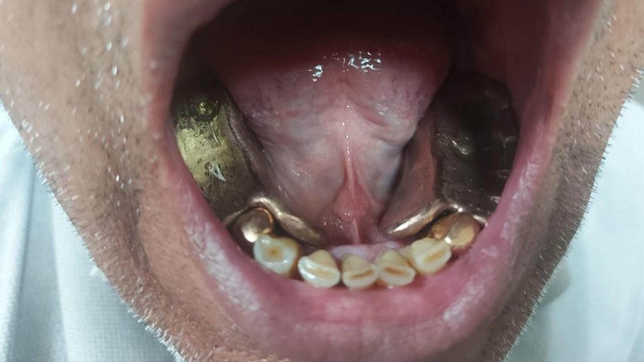 Ağzında sakladığı altınlarla yakalandı