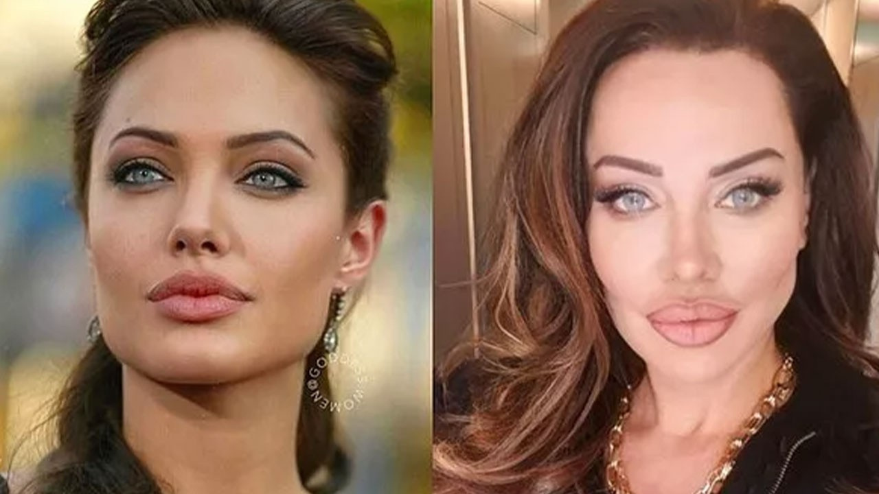 Yerli Angelina Jolie estetiksiz haliyle şoke etti!