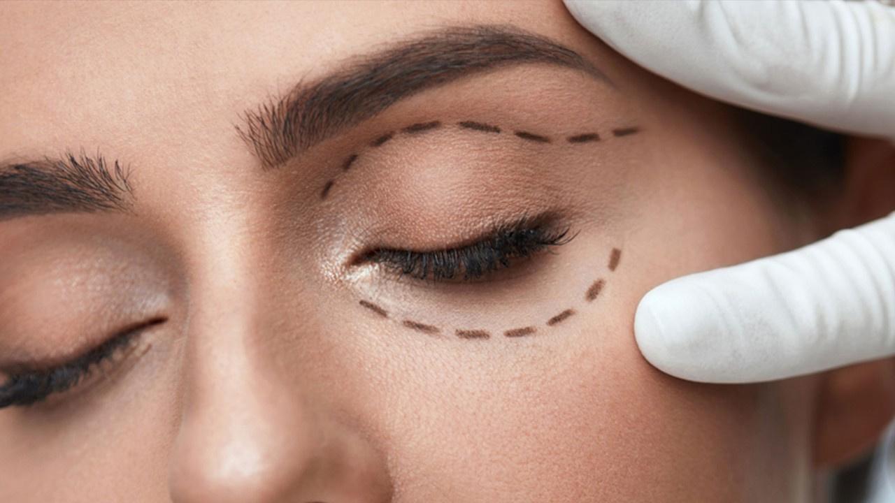 Ameliyatsız göz çevresi estetiği ile gençleşmek mümkün! Göz çevresi problemlerine artık son verin